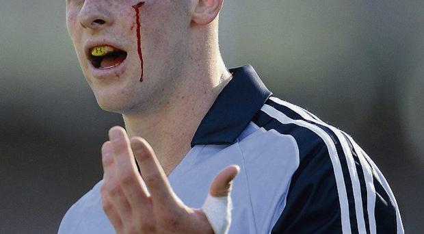 Philly McMahon sustained a cut in the final
