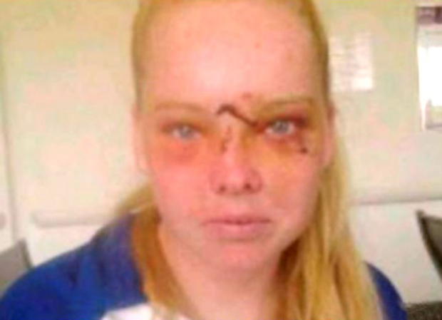 Alisha Jordan in the aftermath of her horrific attack
