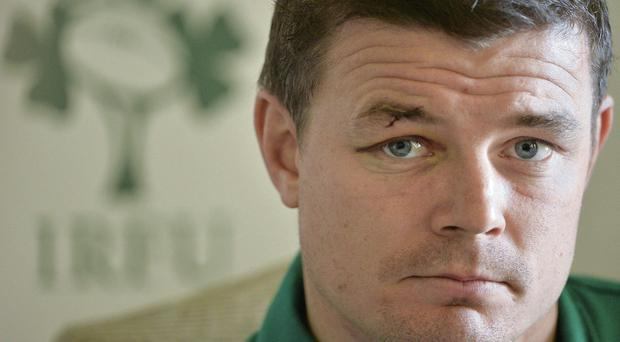 Brian O'Driscoll shows the scars of Ireland's defeat to Australia during yesterday's press conference at Carton House BRENDAN MORAN / SPORTSFILE