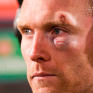 Man-of-the-match Keith Earls shows the scars of battle after their victory over Castres. Photo: Sportsfile