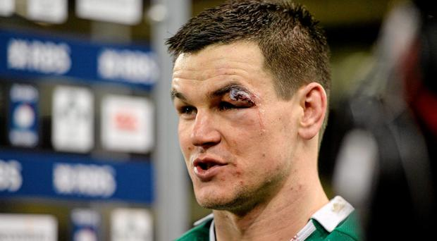 Johnny Sexton with the eye injury he sustained in a collision with France's Mathieu Bastareaud