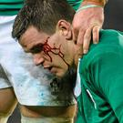 Johnny Sexton after his collision with France's Mathieu Bastareaud