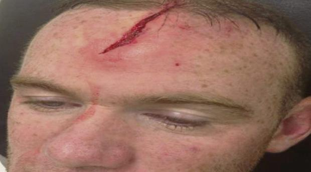The gash on Wayne Rooney's head. He posted this image on his Facebook account.