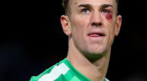 Manuel Pellegrini is not concerned about playing Joe Hart