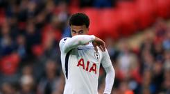 Mauricio Pochettino has called for patience with Dele Alli.