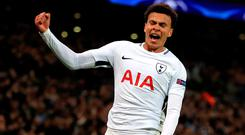 Deli Alli scores against Real Madrid. Photo: PA