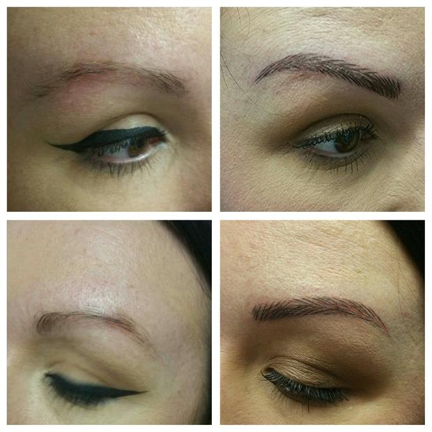 The treatement changed Vicki's eyebrows from sparse (left) to full (right).