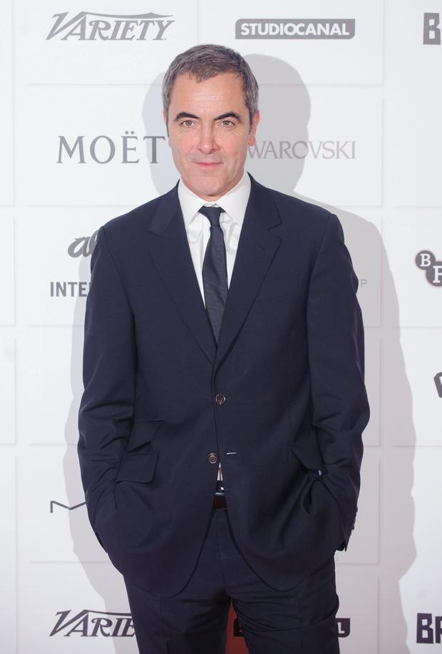James Nesbitt with a fuller head of hair
