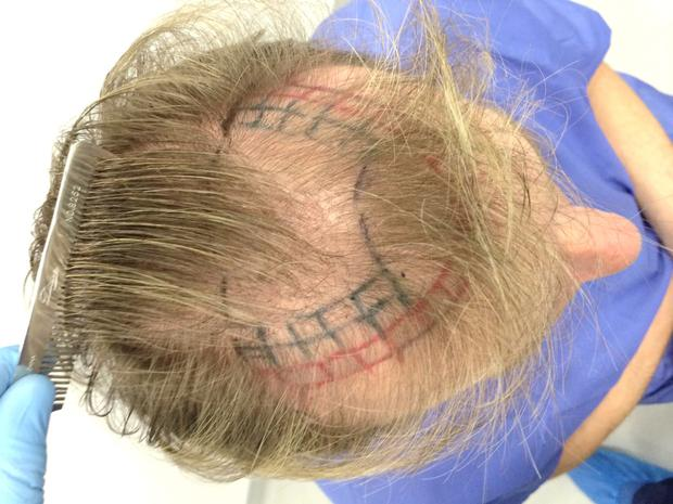 Alan Hughes' pre treatment hairline at Thérapie Hair Restoration clinic