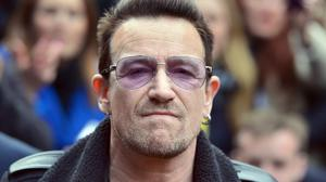 U2 singer Bono suffered multiple fractures and had to have two surgeries after his weekend bicycle accident