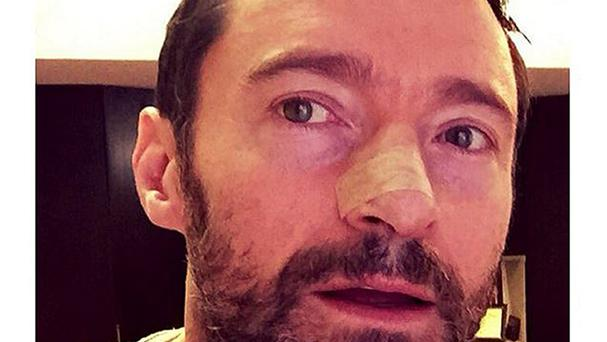Hugh Jackman, who took to social media to warn fans of the dangers of not wearing sunscreen.