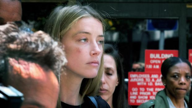 Actress Amber Heard claims a fight with husband Johnny Depp left her bruised (AP)
