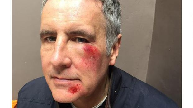 Dermot Murnaghan's injuries after he was involved in a hit-and-run attack