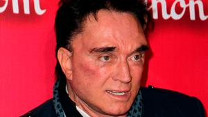 Magician Roy Horn, best known as part of the Las Vegas performing duo of Siegfried and Roy, has died at the age of 75 after contracting coronavirus (Jeff Bottari/AP)