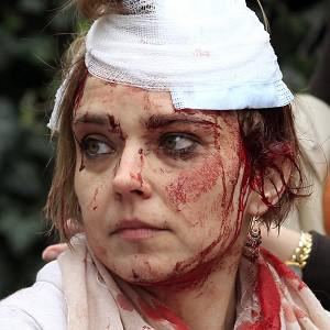 One of the injured treated at the site of the blast (AP)