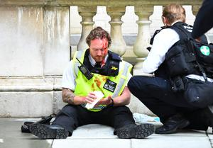 Bloodied: An officer receives medical attention after police clashed with protestors in Whitehall during a Black Lives Matter protest in London.