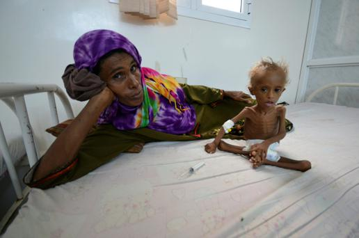 A woman rests on a bed next to her malnourished son at a hospital in the Red Sea port city of Houdieda, Yemen yesterday. Reuters