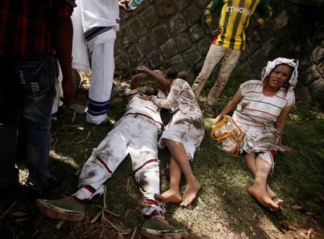 Injured protesters wait for help after several people died during festival in Ethiopia. Photo: Tiksa Negeri