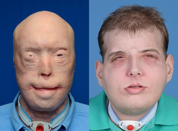 Patrick Hardison in before-and-after pictures