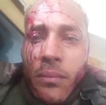 Oscar Perez posted this bloodied image of himself on Instagram yesterday Photo: Reuters