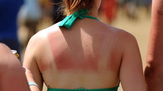 The shoulders and back are among the most common places to get sunburnt