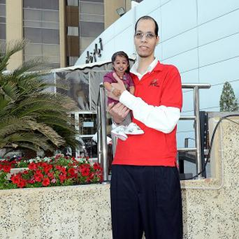 Jyoti Amge and Brahim Takioullah, who have the world's smallest feet and largest feet respectively