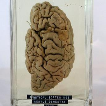 A dissected brain in a jar at the Museum of Science and Industry (MOSI) in Manchester, part of a new exhibition called Brains: The Mind as Matter