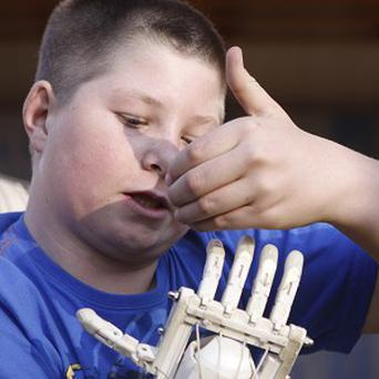 Dylan Laas, one of the 170 people to have been fitted with a budget Robohand (AP)