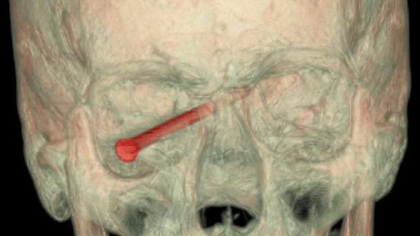A CT scan with a nail in the eye of a patient - after it was removed vision returned to normal (AP/New England Journal of Medicine)