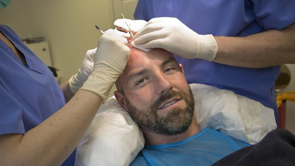 Kris Boyd underwent the hair transplant over two days (Dominic Cocozza/PA Wire)