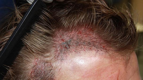 Figures show an increase in web interest in hair loss procedures
