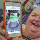 Roger Logan shows a pre-surgery photo of him with his 130lb tumour (The Bakersfield Californian/AP)