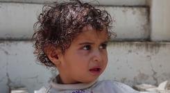 One-year-old Zuhoor is one of many children injured in the Yemen civil war (Save The Children)