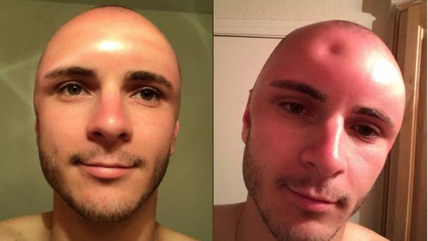 Lesson: put suncream on a shaved head (Cade Huckabay/PA)