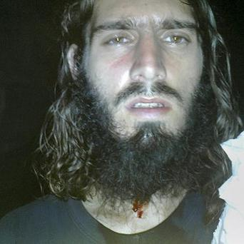 American jihadi Omar Hammami posted this picture on twitter, after what he says was a failed bid to kill him (AP/Internet)