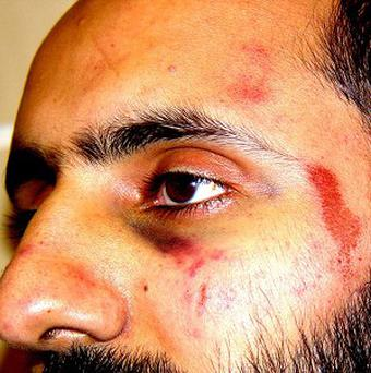 Photo issued by Free Babar Ahmad of injuries sustained by Babar Ahmad when he was arrested in 2003 on suspicion of terrorism offences.