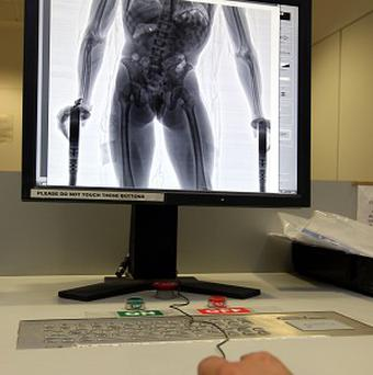 A Briton suspected of smuggling a diamond has been x-rayed by Australian officials
