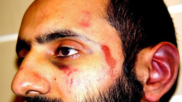 Injuries allegedly suffered by Babar Ahmad when he was arrested in 2003 on suspicion of terrorism offences (Free Babar Ahmad)
