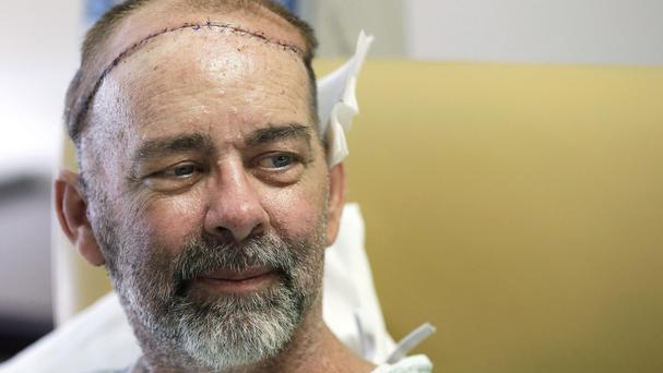 James Boysen has received the world's first skull and scalp transplant. (AP)