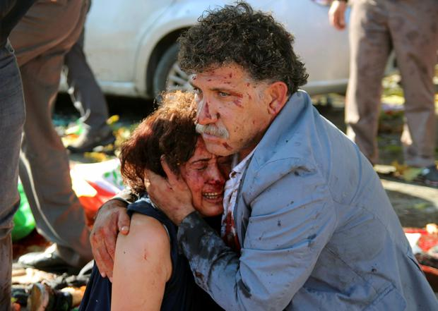 An injured man hugs an injured woman after the explosion at a peace march in Ankara yesterday Credit: Tumay Berkin ( REUTERS)