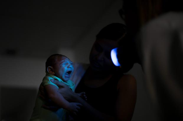 EPIDEMIC: Daniele Ferreira dos Santos holds her son Juan Pedro as he undergoes visual exams at the Altino Ventura foundation in Recife, Brazil. Santos was never diagnosed with Zika, but she is convinced the virus is responsible for her son's defect and for the toll it has taken on her life. Photo: AP