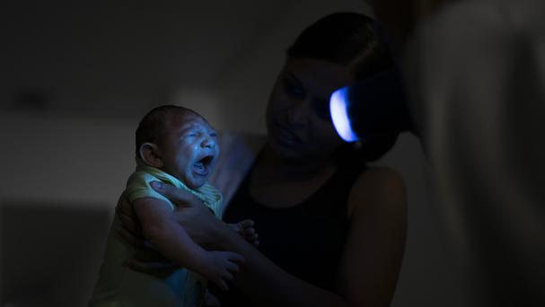 The Zika virus has been linked to birth defects (AP)