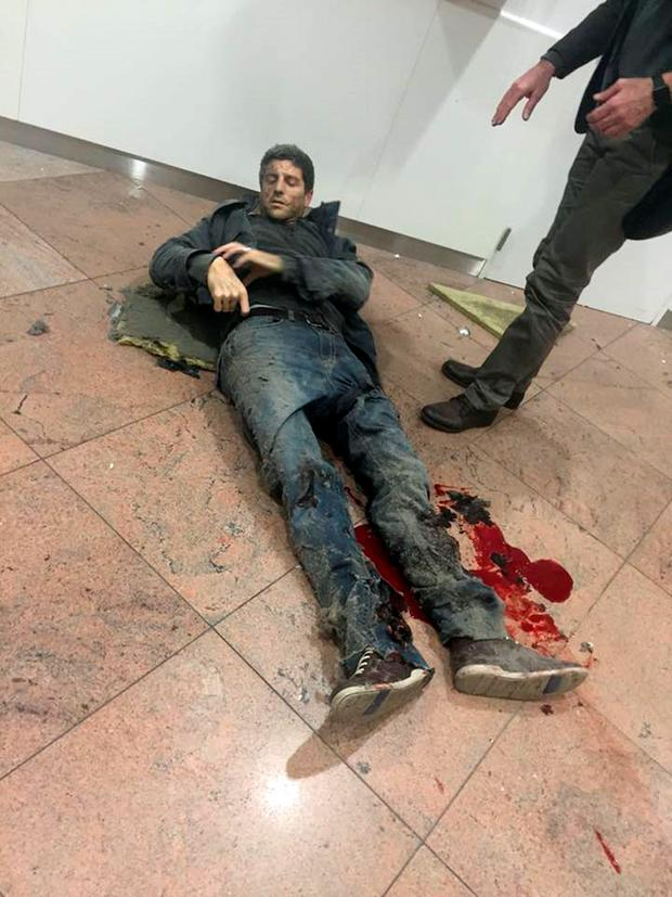 A man lies wounded in the departure lounge of Zaventem Airport in Brussels. Photo: Ketevan Kardava/AP