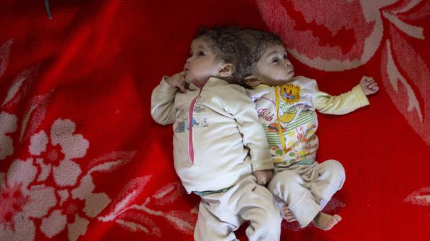 Twin girls Mai, right, and Menna are attached by the head (AP)
