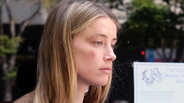 Actress Amber Heard claims bruising on her face was caused when husband Johnny Depp threw a mobile phone at her (AP)