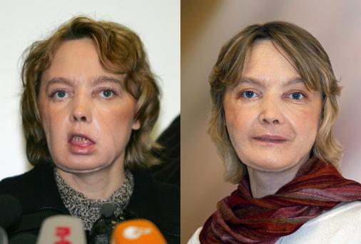 Pictures of French mother-of-two Isabelle Dinoire a few months after her ground-breaking face transplant surgery, in February 2006, left, and in November 2006, right.