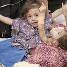 Eva and Erika Sandoval before the operation to separate them (Lucile Packard Children's Hospital Stanford/AP)