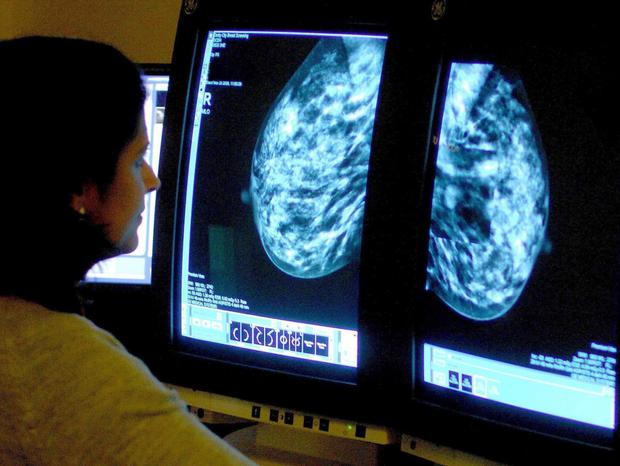 Doctors use mammograms to locate breast cancer
