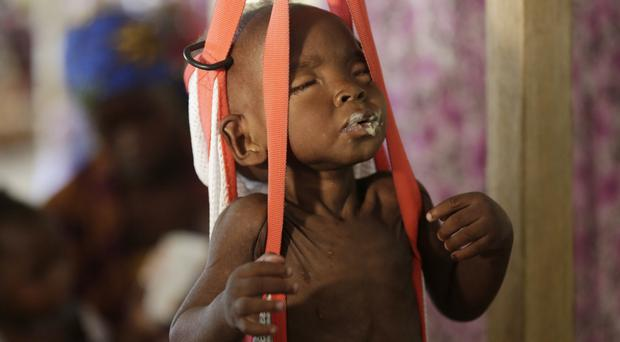 A malnourished child is weighed at a clinic run by Doctors Without Borders in Maiduguri, Nigeria (AP)
