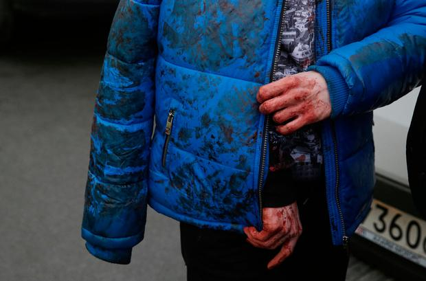 An iniured person walks outside Sennaya Ploshchad metro station, following explosions in two train carriages at metro stations in St. Petersburg, Russia April 3, 2017. Photo: REUTERS/Anton Vaganov